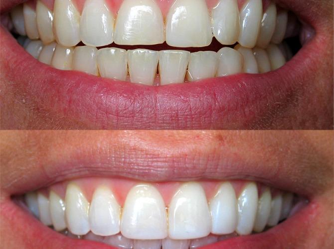 client 2 dental work
