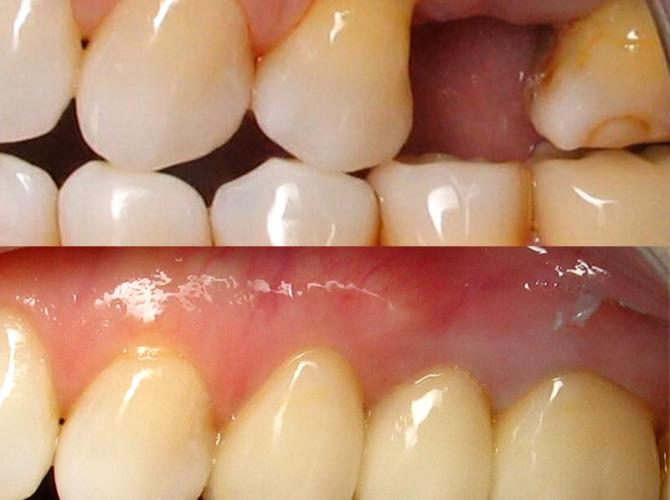 client 3 dental work